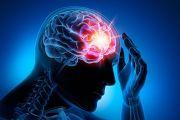 Neurocirurgia Funcional