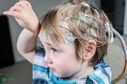Tratamento cirúrgico da epilepsia em crianças